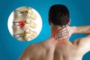 Нарушенное кровообращение головного мозга