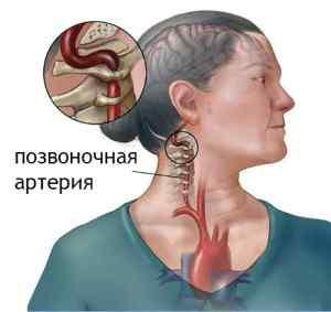 Недостаточность позвоночной (базилярной) артерии