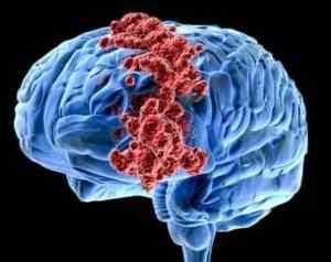 Причины, которые могут вызывать головные боли и тошноту