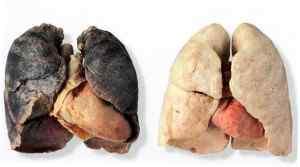 Процессы, происходящие при курении