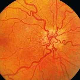 Расширение вен глазного дна