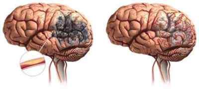Осторожно, в опасности головной мозг