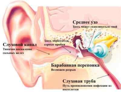 Болит голова в области ушей воспаление в среднем ухе