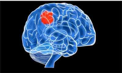Новообразования головного мозга
