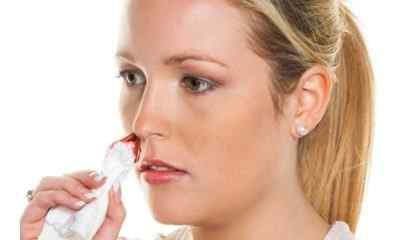 Взаимосвязь головных болей и кровотечений из носа