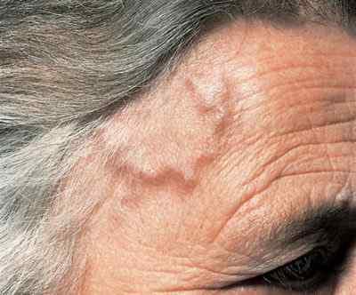 Что делать при воспалении височной артерии