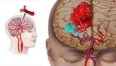 Инсульт, ишемический и геморрагический