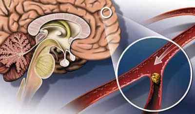 Атеросклероз сосудов шеи и головного мозга. Повышенное артериальное давление