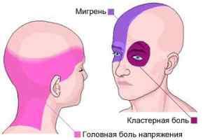 Причины головной боли напряжения