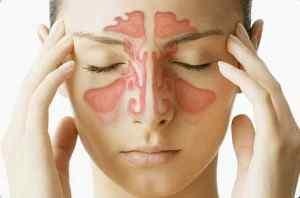 Заболевания, при которых болит голова в области лба