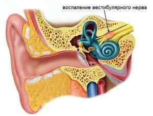 Причины головокружения при нормальном артериальном давлении