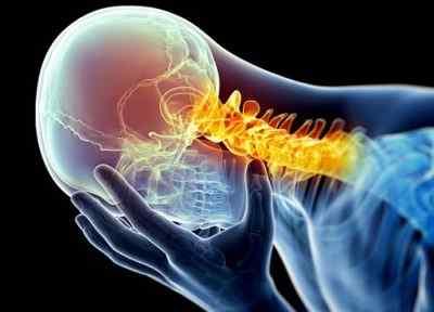 Основные симптомы шейной мигрени