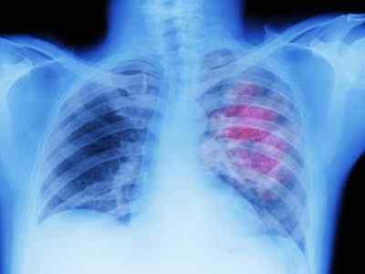 Что происходит в человеческом организме при бросании курения