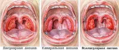 Наиболее распространённые типы ангины
