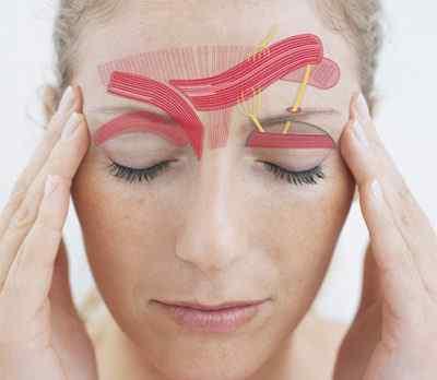Пусковые механизмы (триггеры) мигрени