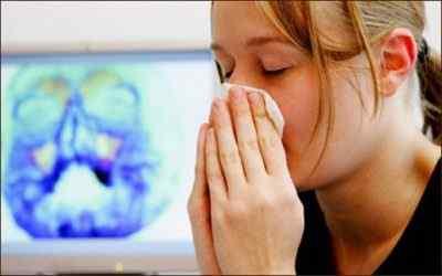 Воспаление носовых пазух – что это такое