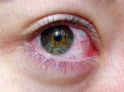 Воспаление роговицы – почему возникает недуг